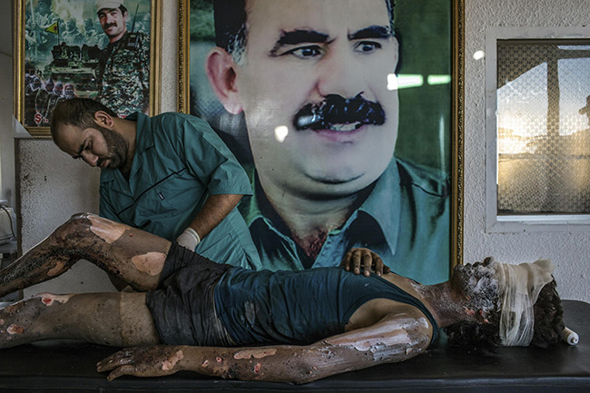 IS Fighter Treated at Kurdish Hospital - Mauricio Lima - A doctor rubs ointment on the burns of Jacob, a 16-year-old fighter from the group calling itself Islamic State (IS), in front of a poster of Abdullah Öcalan, leader of the Kurdistan Workers' Party (PKK), at a hospital in Al-Hasaka, northern Syria.